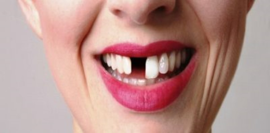 8 Common Causes Of Missing Teeth In Adults